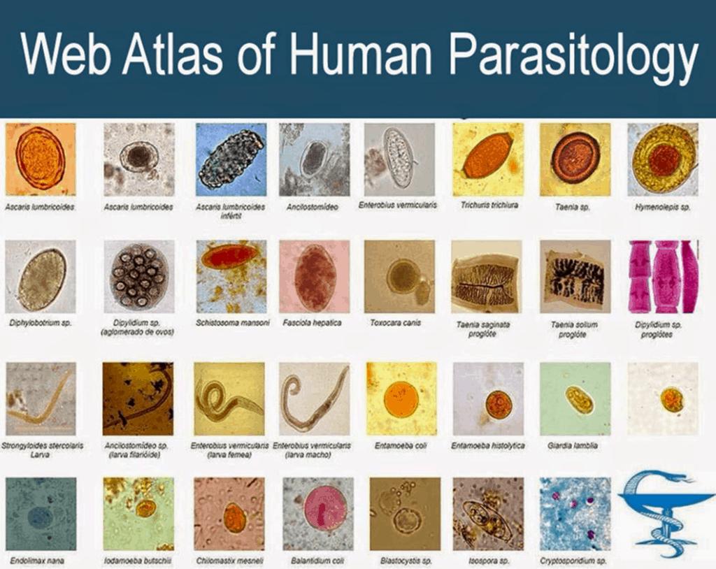 web atlas human parasitology