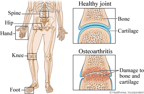 joint replacements how to avoid them