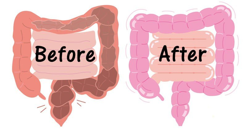 before and after colon cleansing